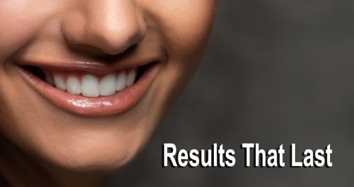 Edmonton-Dentist-10
